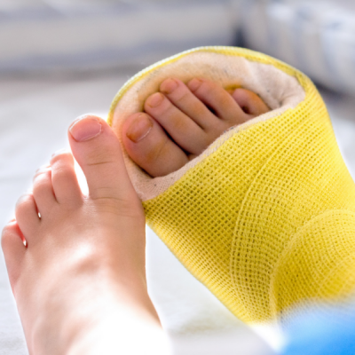 How To Survive A Non-Weight Bearing Cast