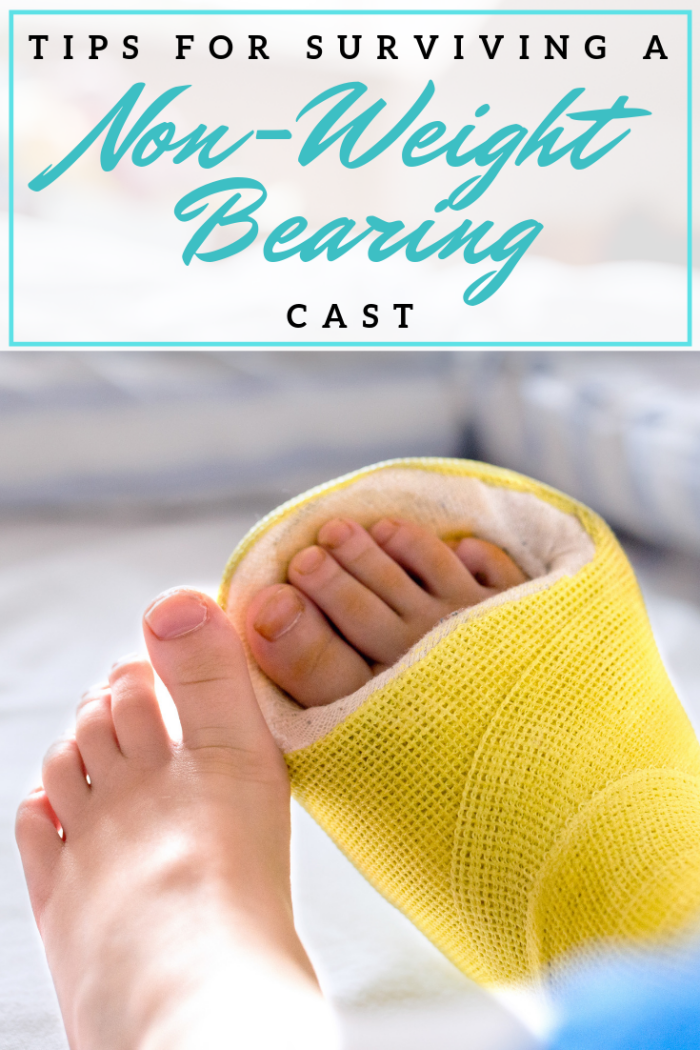Tips For Surviving A Non-Weight Bearing Cast